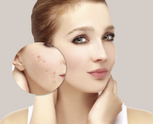 Why Choose Your Esthetician for Acne Treatment?