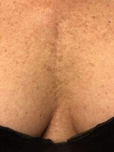 Second treatment